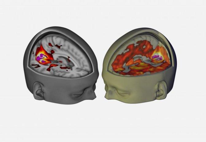 Wpływ LSD na mózg ujawniony po raz pierwszy w historii na kolorowych skanach!