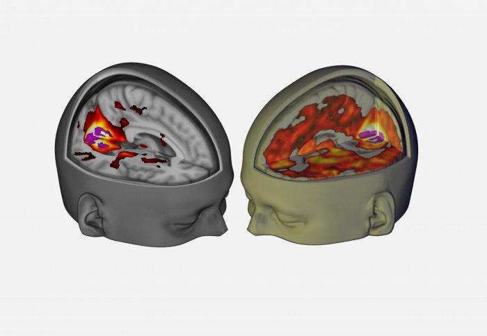 lsd_brain_scan1