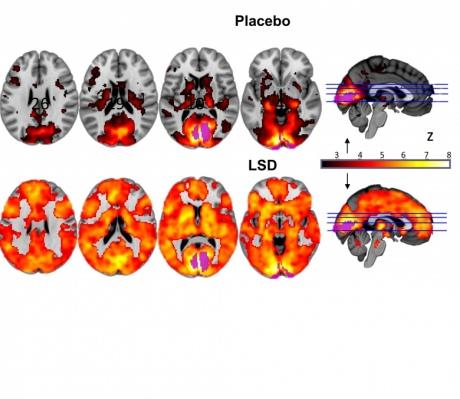 lsd_brain_scan2